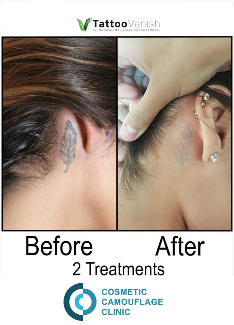 Before and After Tattoo Removal - Get the Best Res (31)