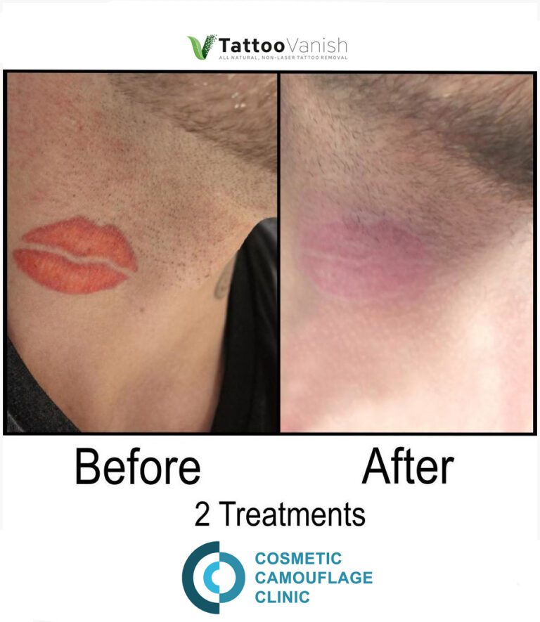 Before and After Tattoo Removal - Get the Best Res (38)