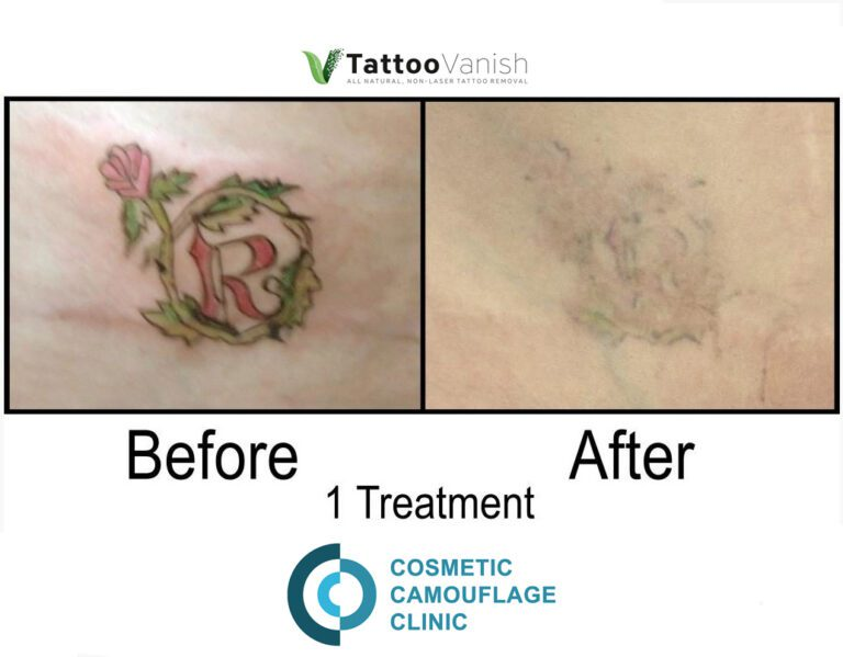 Before and After Tattoo Removal - Get the Best Res (41)
