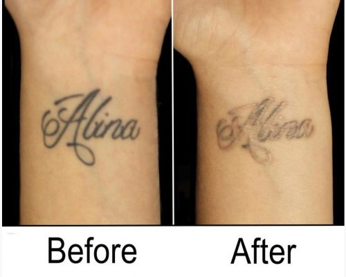Before and After Tattoo Removal - Get the Best Res (37)